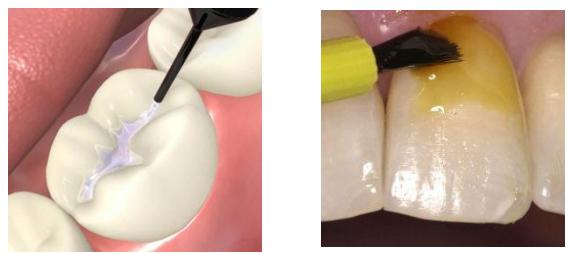 Lakowanie i lakierowanie zębów