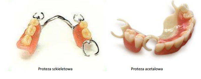 Protezy stomatologiczne