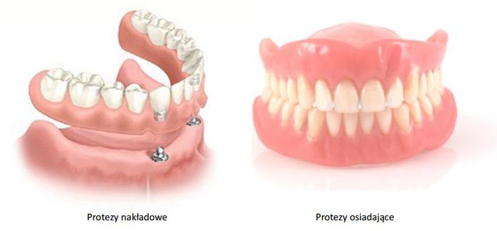 Różne rodzaje protez
