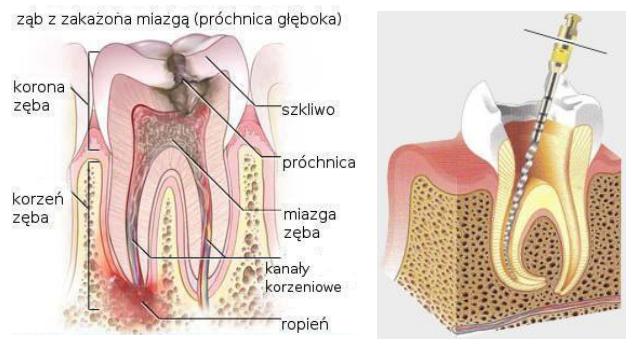 Zakażona zębina