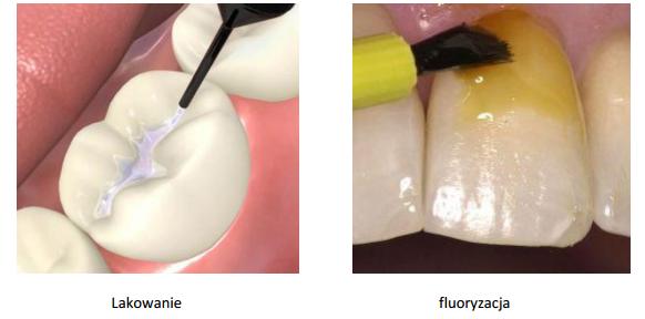 Lakowanie i fluoryzacja zębów
